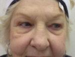 Blepharoplasty (Eyelid Lift Surgery)